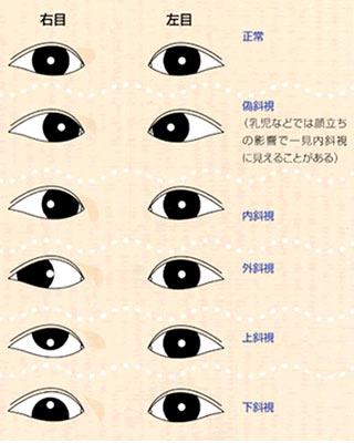 斜視の種類について